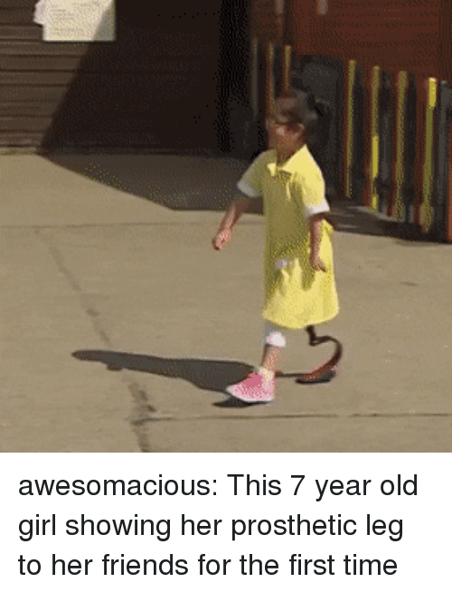 Friends, Tumblr, and Blog: awesomacious:  This 7 year old girl showing her prosthetic leg to her friends for the first time