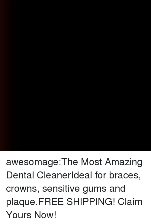 Tumblr, Blog, and Braces: awesomage:The Most Amazing Dental CleanerIdeal for braces, crowns, sensitive gums and plaque.FREE SHIPPING! Claim Yours Now!