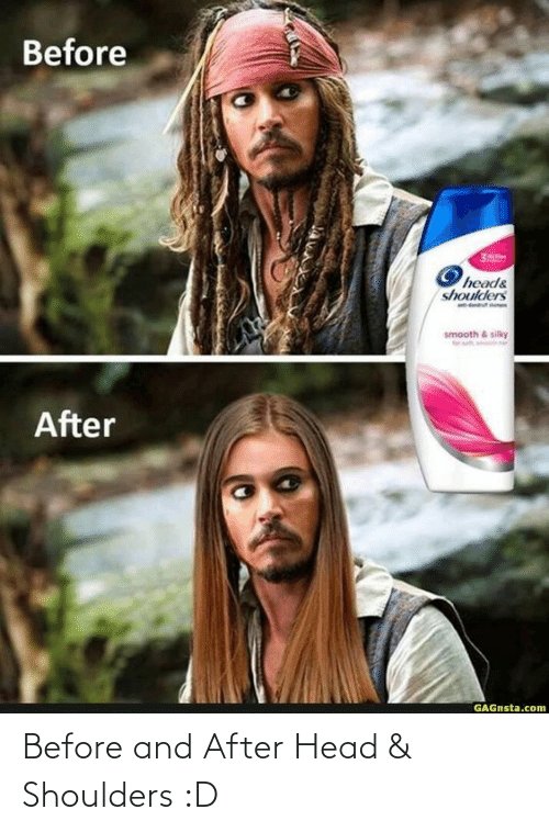 After: Before and After Head & Shoulders :D