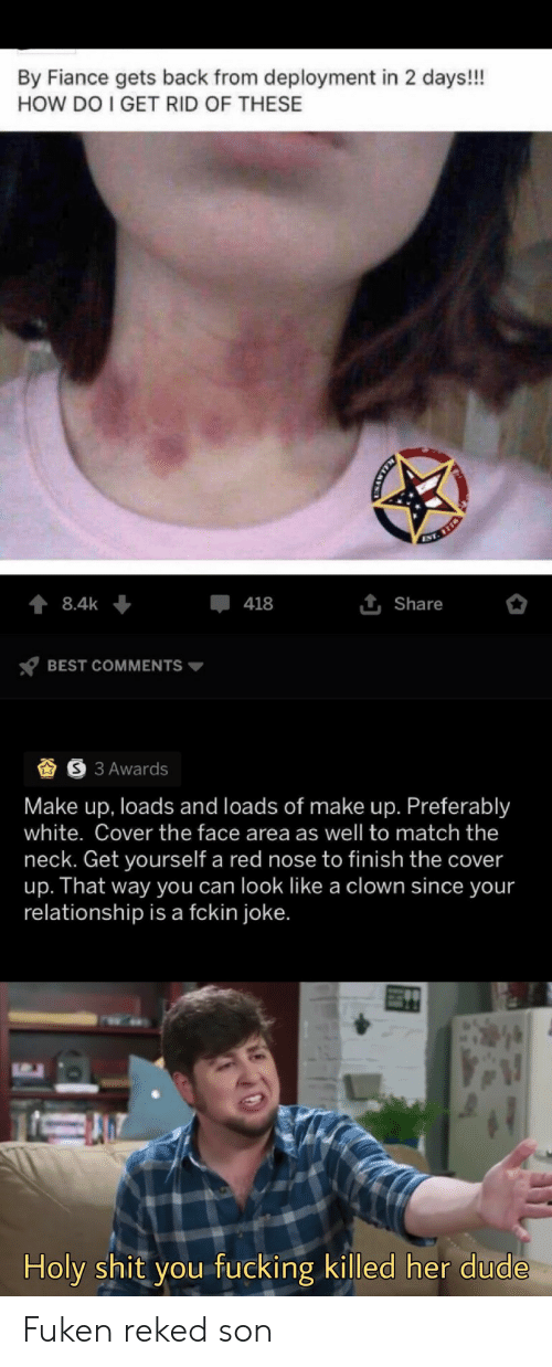 Dude, Fucking, and Shit: By Fiance gets back from deployment in 2 days!!  HOW DO I GET RID OF THESE  ENT. 78  8.4k  418  1 Share  BEST COMMENTS  3 Awards  Make up, loads and loads of make up. Preferably  white. Cover the face area as well to match the  neck. Get yourself a red nose to finish the cover  up. That way you can look like a clown since your  relationship is a fckin joke.  Holy shit you fucking killed her dude  CMAWTN Fuken reked son