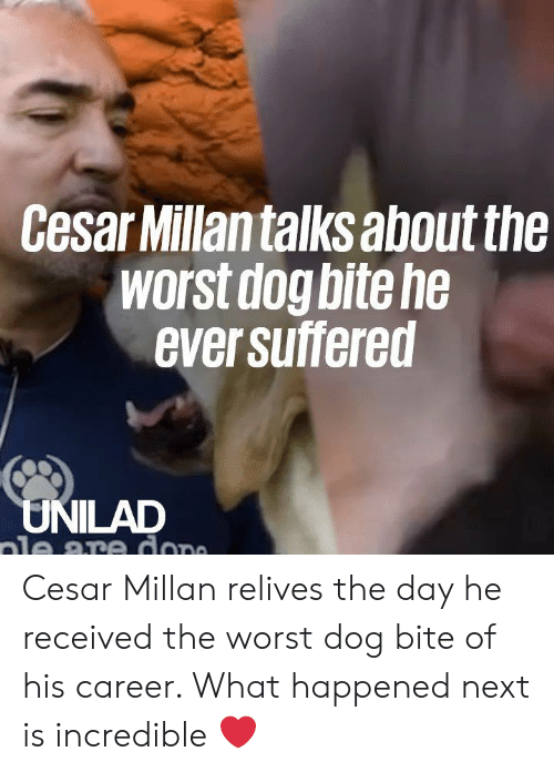 Dog Bite: Cesar Millantalks about the  worst dog bite he  ever suffered  UNILAD  ale are dope Cesar Millan relives the day he received the worst dog bite of his career. What happened next is incredible ❤️️