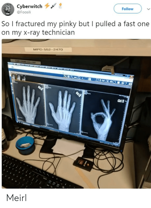 Pinky, MeIRL, and One: Cyberwitch  @Foosili  Follow  So l fractured my pinky but I pulled a fast one  on my X-ray technician  MPD 552- 247O Meirl