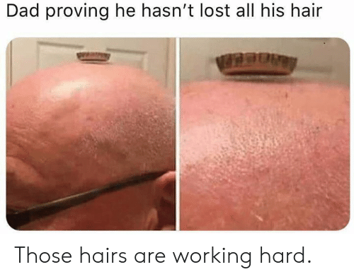 Dad, Dank, and Lost: Dad proving he hasn't lost all his hain Those hairs are working hard.