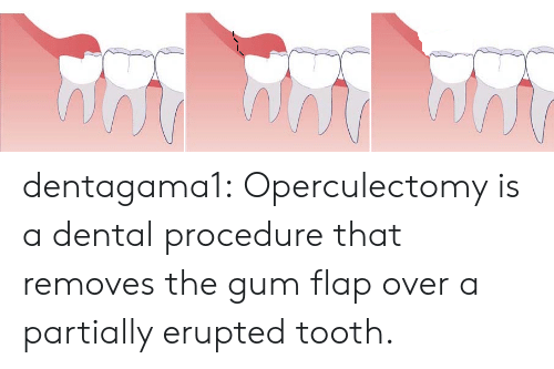 News, Tumblr, and Blog: dentagama1:    Operculectomy is a dental procedure that removes the gum flap over a partially erupted tooth.