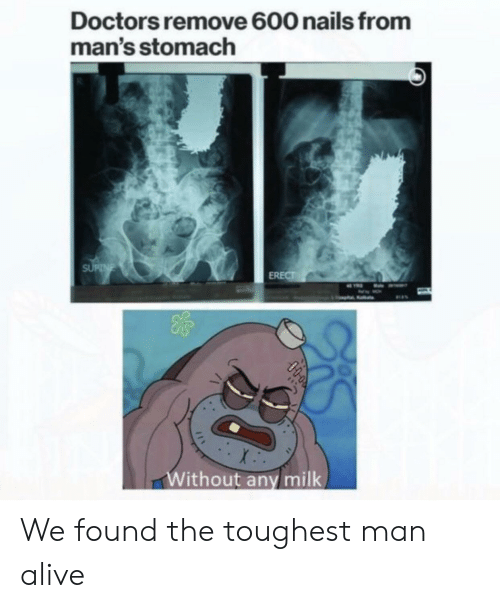 toughest: Doctors remove 600 nails from  man's stomach  SUPNE  ERECT  Without any milk  0000 We found the toughest man alive
