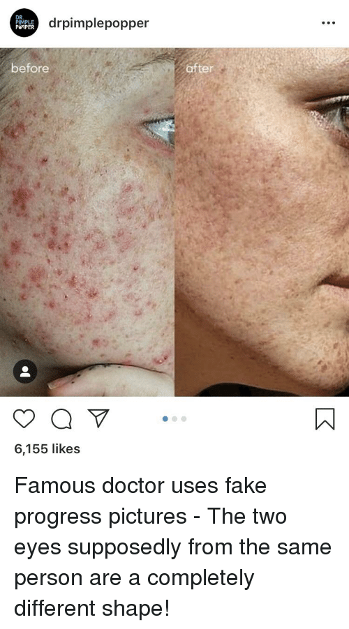 Dr Pimple Drpimplepopper Before After 6155 Likes Doctor