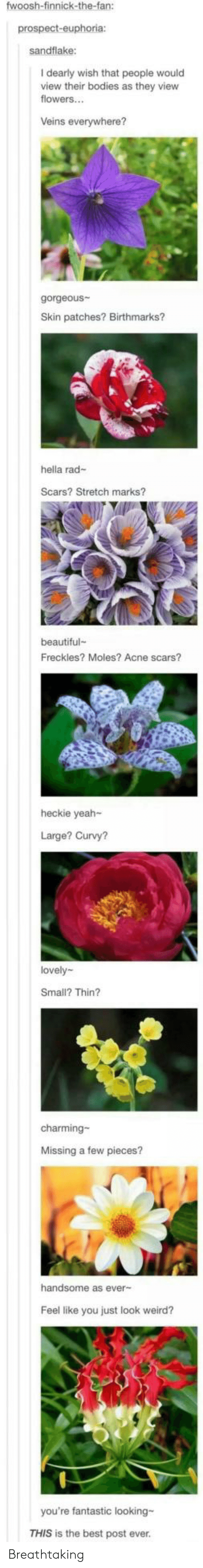 Charming: fwoosh-finnick-the-fan:  prospect-euphoria:  sandflake:  I dearly wish that people would  view their bodies as they view  flowers...  Veins everywhere?  gorgeous  Skin patches? Birthmarks?  hella rad-  Scars? Stretch marks?  beautiful  Freckles? Moles? Acne scars?  heckie yeah-  Large? Curvy?  lovely  Small? Thin?  charming-  Missing a few pieces?  handsome as ever-  Feel like you just look weird?  you're fantastic looking-  THIS is the best post ever. Breathtaking