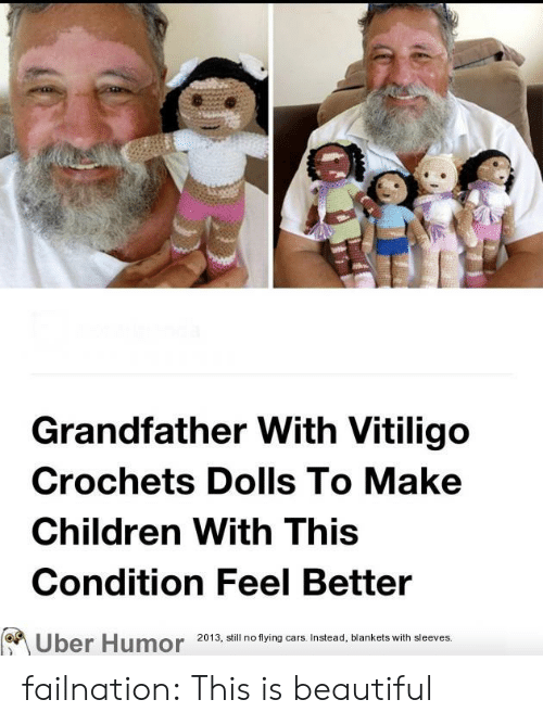 Beautiful, Cars, and Children: Grandfather With Vitiligo  Crochets Dolls To Make  Children With This  Condition Feel Better  2013, still no flying cars. Instead, blankets with sleeves.  Uber Humor failnation:  This is beautiful