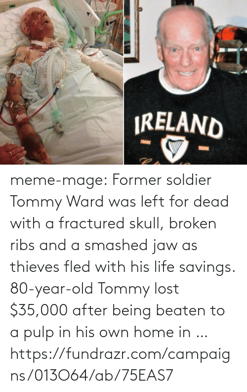Fractured: IRELAND  TRADE  MARK meme-mage:    Former soldier Tommy Ward was left for dead with a fractured skull, broken ribs and a smashed jaw as thieves fled with his life savings. 80-year-old Tommy lost $35,000 after being beaten to a pulp in his own home in …   https://fundrazr.com/campaigns/013O64/ab/75EAS7