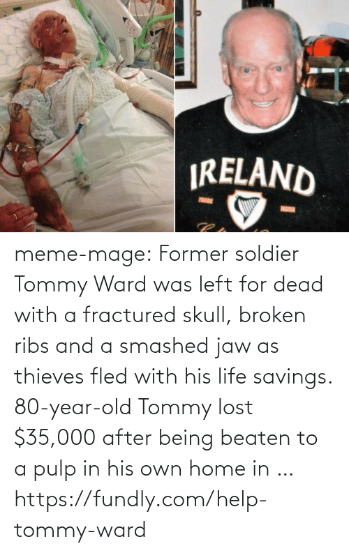 Fractured: IRELAND  TRADE  MARK meme-mage:    Former soldier Tommy Ward was left for dead with a fractured skull, broken ribs and a smashed jaw as thieves fled with his life savings. 80-year-old Tommy lost $35,000 after being beaten to a pulp in his own home in …   https://fundly.com/help-tommy-ward