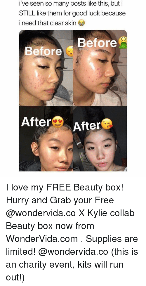 Love, Run, and Free: i've seen so many posts like this, but i  STILL like them for good luck because  i need that clear skin  Before  Before  AfterのAfter I love my FREE Beauty box! Hurry and Grab your Free @wondervida.co X Kylie collab Beauty box now from WonderVida.com . Supplies are limited! @wondervida.co (this is an charity event, kits will run out!)