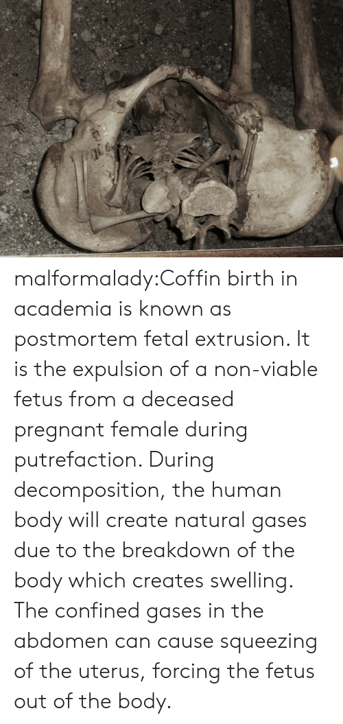 Squeezing: malformalady:Coffin birth in academia is known as postmortem fetal extrusion. It is  the expulsion of a non-viable fetus from a deceased pregnant female  during putrefaction. During decomposition, the human body will create  natural gases due to the breakdown of the body which creates swelling.  The confined gases in the abdomen can cause squeezing of the uterus,  forcing the fetus out of the body.