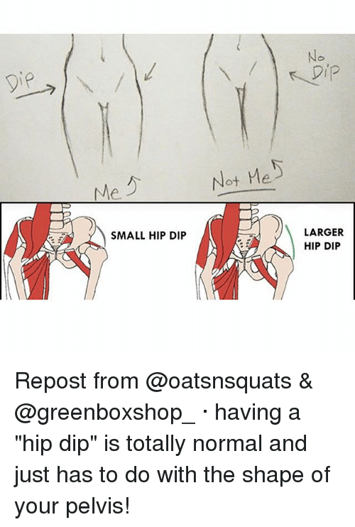 "Memes, 🤖, and Pelvis: No  Not Me  LARGER  HIP DIP  SMALL HIP DIP Repost from @oatsnsquats & @greenboxshop_ · having a ""hip dip"" is totally normal and just has to do with the shape of your pelvis!"