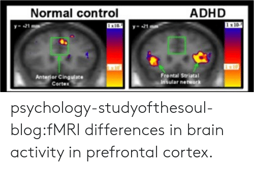 Target, Tumblr, and Control: Normal control  ADHD  21  -21  x10  Anterior Cingulace  Cortex  Frontal Striatal  Insular network psychology-studyofthesoul-blog:fMRI differences in brain activity in prefrontal cortex.