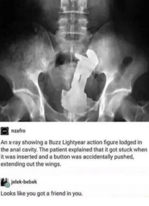 x-ray: nzafro  An x-ray showing a Buzz Lightyear action figure lodged in  the anal cavity. The patient explained that it got stuck when  it was inserted and a button was accidentally pushed  extending out the wings.  jelek-bebek  Looks like you got a friend in you.