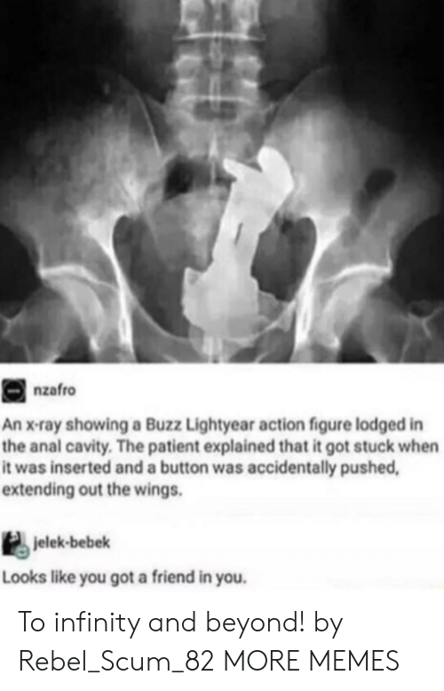 x-ray: nzafro  An x-ray showing a Buzz Lightyear action figure lodged in  the anal cavity. The patient explained that it got stuck when  it was inserted and a button was accidentally pushed  extending out the wings.  jelek-bebek  Looks like you got a friend in you. To infinity and beyond! by Rebel_Scum_82 MORE MEMES