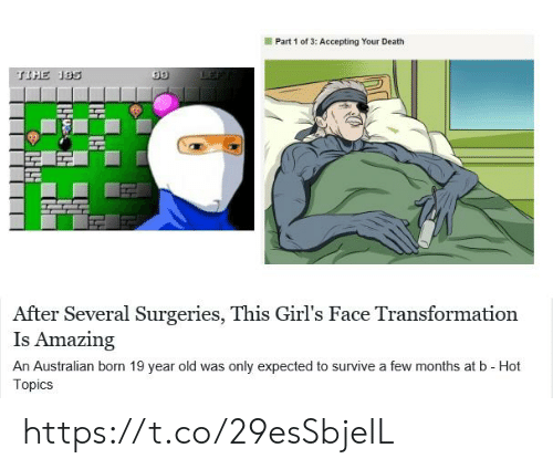 Girls, Death, and Amazing: Part 1 of 3: Accepting Your Death  TIHE 185  After Several Surgeries, This Girl's Face Transformation  Is Amazing  An Australian born 19 year old was only expected to survive a few months at b - Hot  Topics https://t.co/29esSbjeIL