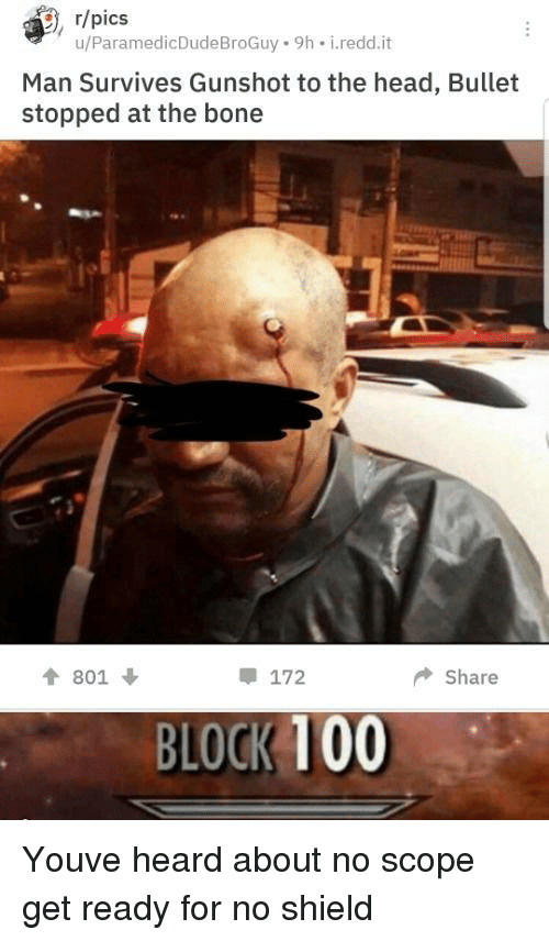 Anaconda, Head, and Shield: , r/pics  u/ParamedicDudeBroGuy 9h i.redd.it  Man Survives Gunshot to the head, Bullet  stopped at the bone  會801 ↓  172  ◆ Share  BLOCK 100 Youve heard about no scope get ready for no shield