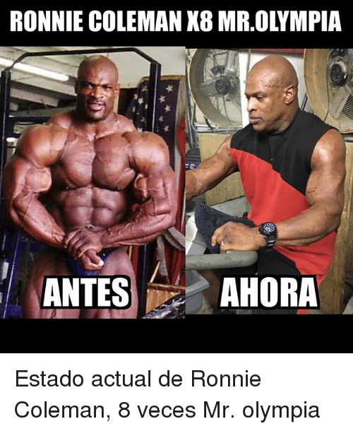 Ronnie Coleman, Mr Olympia, and Olympia: RONNIE COLEMAN X8 MR.OLYMPIA  ANTESAHORA Estado actual de Ronnie Coleman, 8 veces Mr. olympia