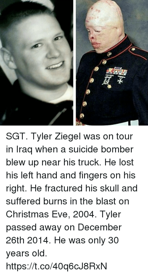 Christmas, Memes, and Lost: SGT. Tyler Ziegel was on tour in Iraq when a suicide bomber blew up near his truck. He lost his left hand and fingers on his right. He fractured his skull and suffered burns in the blast on Christmas Eve, 2004. Tyler passed away on December 26th 2014. He was only 30 years old. https://t.co/40q6cJ8RxN