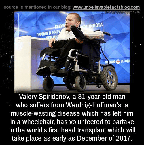 epa: source ls mentioned In our blog  www.unbelievablefactsblog.com  EPA  MnoTA  ITEPBAAB MMP  Valery Spiridonov, a 31-year-old man  who suffers from Werdnig-Hoffman's, a  muscle-wasting disease which has left him  in a wheelchair, has volunteered to partake  in the world's first head transplant which will  take place as early as December of 2017.