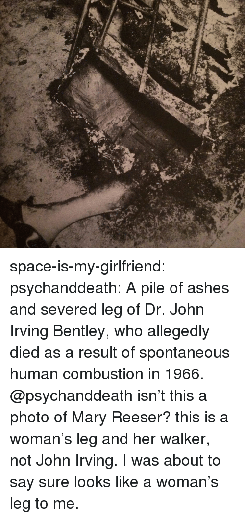 Tumblr, Bentley, and Blog: space-is-my-girlfriend:  psychanddeath:  A  pile of ashes and severed leg of Dr. John Irving Bentley, who allegedly died as a result of spontaneous human combustion in 1966.    @psychanddeath isn't this a photo of Mary Reeser? this is a woman's leg and her walker, not John Irving.   I was about to say sure looks like a woman's leg to me.