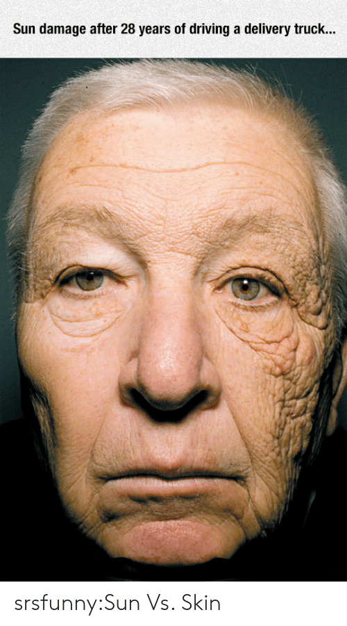 Driving, Tumblr, and Blog: Sun damage after 28 years of driving a delivery truck... srsfunny:Sun Vs. Skin