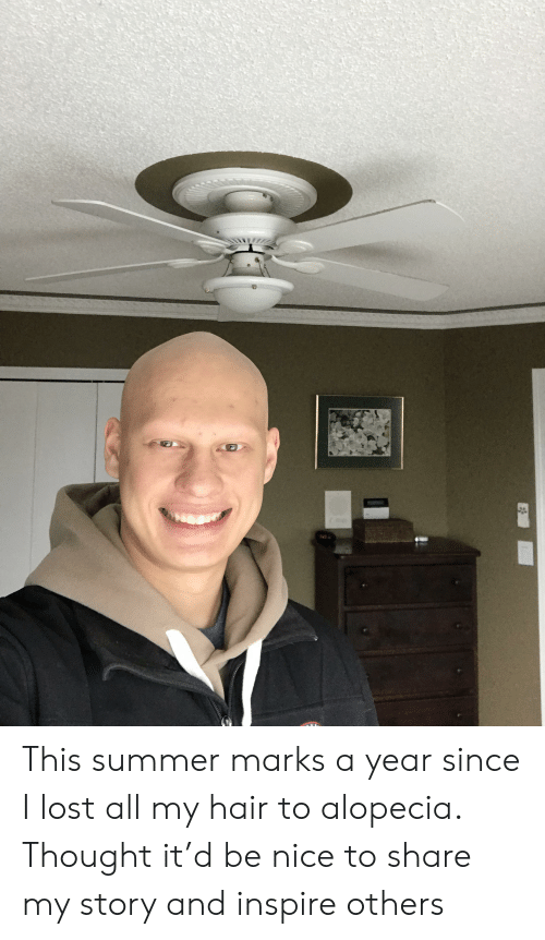 Lost, Summer, and Hair: This summer marks a year since I lost all my hair to alopecia. Thought it'd be nice to share my story and inspire others