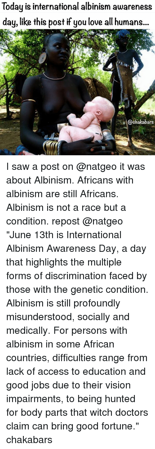 "Love, Memes, and Saw: Today is international albinism awareness  day, like this post if you love all humans...  ars I saw a post on @natgeo it was about Albinism. Africans with albinism are still Africans. Albinism is not a race but a condition. repost @natgeo ""June 13th is International Albinism Awareness Day, a day that highlights the multiple forms of discrimination faced by those with the genetic condition. Albinism is still profoundly misunderstood, socially and medically. For persons with albinism in some African countries, difficulties range from lack of access to education and good jobs due to their vision impairments, to being hunted for body parts that witch doctors claim can bring good fortune."" chakabars"