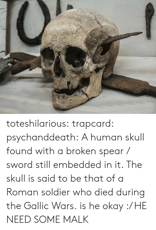 human skull: toteshilarious:  trapcard:  psychanddeath:  A human skull found with a broken spear / sword still embedded in it. The skull is said to be that of a Roman soldier who died during the Gallic Wars.  is he okay :/   HE NEED SOME MALK