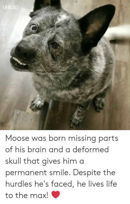 Dank, Life, and Brain: UNILAD  MOOSEBOY16 Moose was born missing parts of his brain and a deformed skull that gives him a permanent smile. Despite the hurdles he's faced, he lives life to the max! ❤️