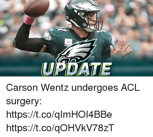 Memes, 🤖, and Acl: UPDATE Carson Wentz undergoes ACL surgery: https://t.co/qImHOI4BBe https://t.co/qOHVkV78zT