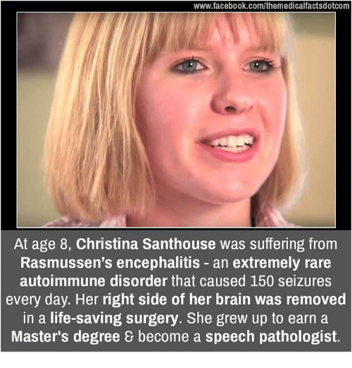 Memes, 🤖, and Seizure: www.facebook.com/themedicalfactsdotcom  At age 8, Christina Santhouse was suffering from  Rasmussen's encephalitis an extremely rare  autoimmune disorder that caused 150 seizures  every day. Her right side of her brain was removed  in a life-saving surgery. She grew up to earn a  Master's degree become a speech pathologist.