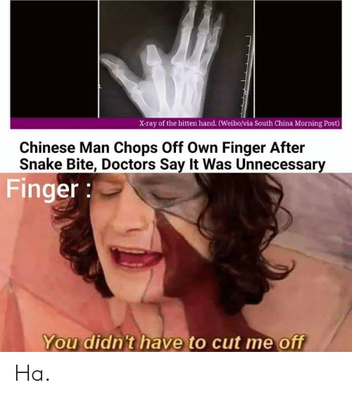 China, Say It, and Chinese: X-ray of the bitten hand. (Weibo/via South China Morning Post)  Chinese Man Chops Off Own Finger After  Snake Bite, Doctors Say It Was Unnecessary  Finger  You didn't have to cut me off Ha.